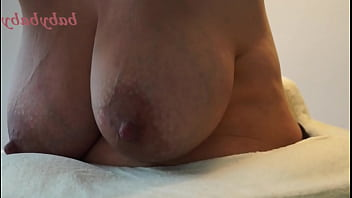 Engorged Breasts