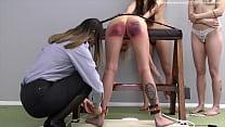 Severe Corporal Punishment