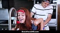 Cute Teen With Braces Gets Head Gear Stuck In F...