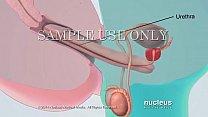 Semen Analysis (Sperm Count)