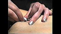Long Needle Treatment