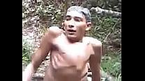 Guarabira, homen com 3 pernas