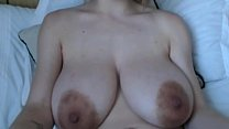 Engorged Breasts - Closeup View's Thumb