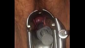 Artificial Insemination Putting Cum in Cervix