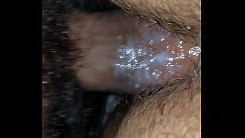 Hairy cell leukemia wiki - Pregnant creamy fuck