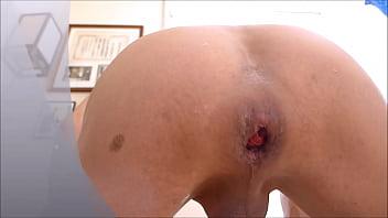 Tiffani rai gay Dilatación anal