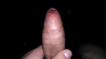 Adult male penis foreskin rash cure Camila is very happy