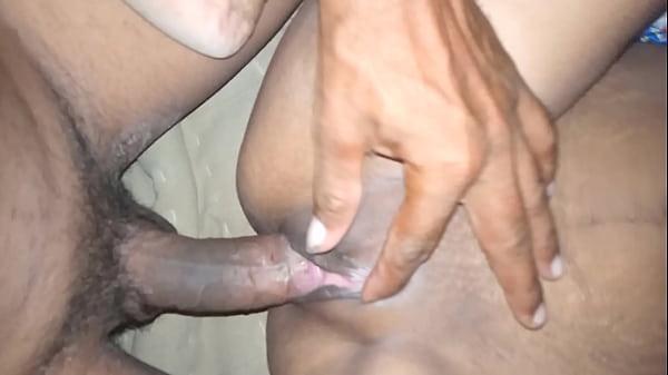 Patel Thumb