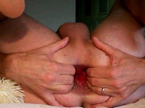 Anal fist toy  insertion  gape  ass play -Analdehner Ass Hole Extrem Gay Men